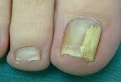 足の爪の濁りの症状は 爪が白い 硬い 写真で確認